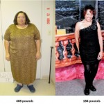 Tracey transformed her life with weight loss surgery and healthy lifestyle changes