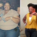 Christi lost 214 pounds with the Lap Band
