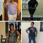 Denetra lost 67 pounds with weight loss surgery