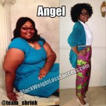 Angel lost 114 pounds with weight loss surgery