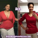 Ace lost 107 pounds with weight loss surgery
