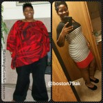Anissa lost 160 pounds with surgery