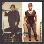 Nicole lost 174 pounds with surgery