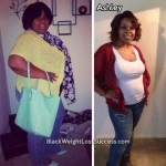 Ashley lost 123 pounds with surgery
