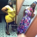 Martine lost 122 pounds with surgery