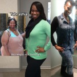 Tabrashia lost 198 pounds with surgery