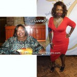 CJ lost 178 pounds with surgery