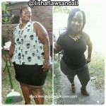 Elisha lost 125 pounds with weight loss surgery