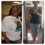 LaKendra lost 70 pounds with weight loss surgery