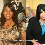 Joy lost 130 pounds with surgery